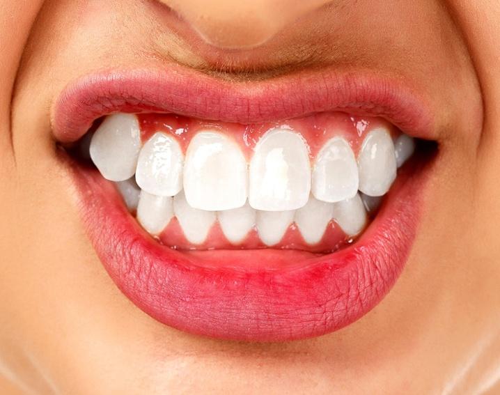 bruxism_teeth