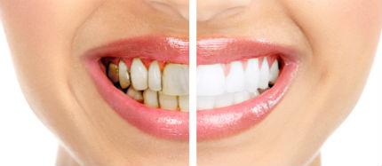 Tooth Enamel Erosion