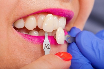 Cosmetic Dentistry Procedures & Treatments (What To Know)