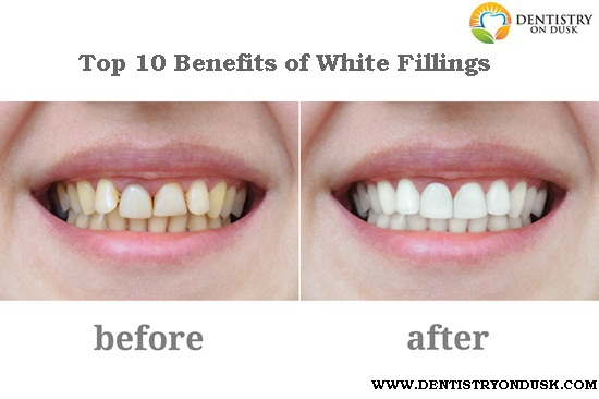 What Are the Advantages of White Fillings? (10 Top Benefits)