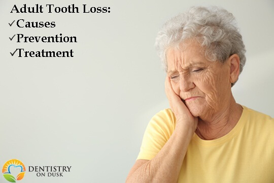 Adult Tooth Loss: Its Causes, Prevention and Treatment