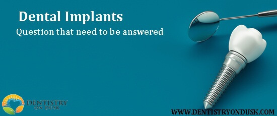 Have Questions About Dental Implants?