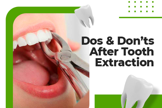What to Do (And Not Do) after a Tooth Extraction
