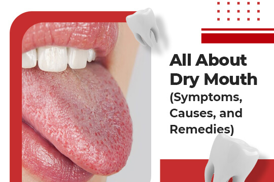 All About Dry Mouth (Symptoms, Causes, and Remedies)