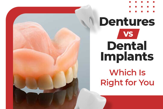 Dentures vs. Dental Implants: Which Is Right for You?