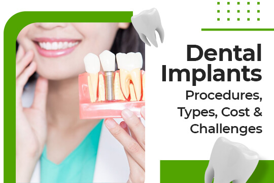 What Is the Value of Dental Implants? (Basic Guide)