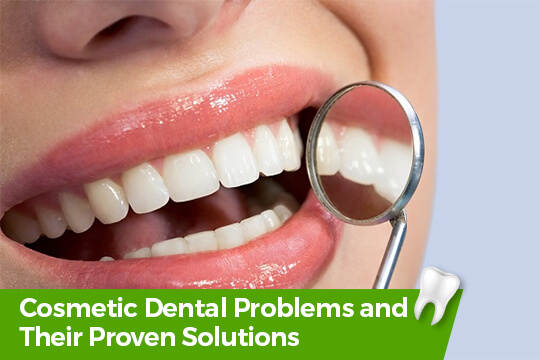 Cosmetic Dental Problems and Solutions