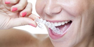 Orthodontics & Invisalign