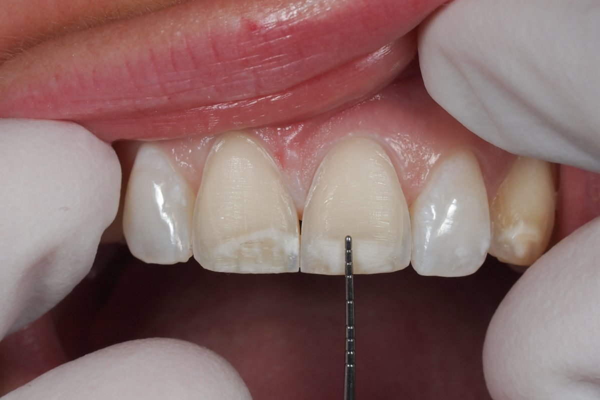 Image result for What is the purpose of dental veneers