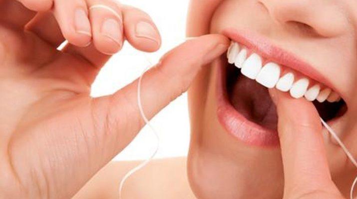 tartar-buildup-on-your-teeth