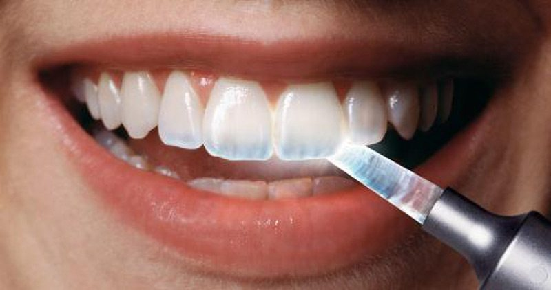 Everything You Need To Know About Tooth Enamel Erosion Part I