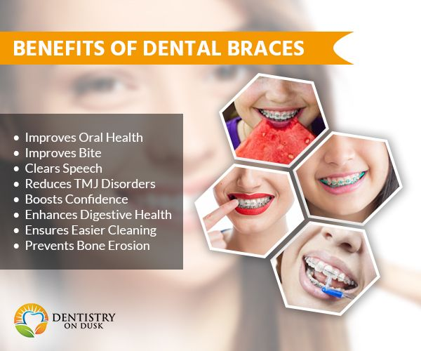 Benefits of Dental Braces