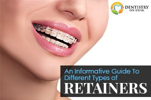 A Guide to Different Types of Dental Retainers - Dentistry