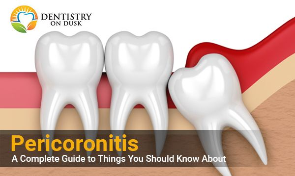 Know About Pericoronitis