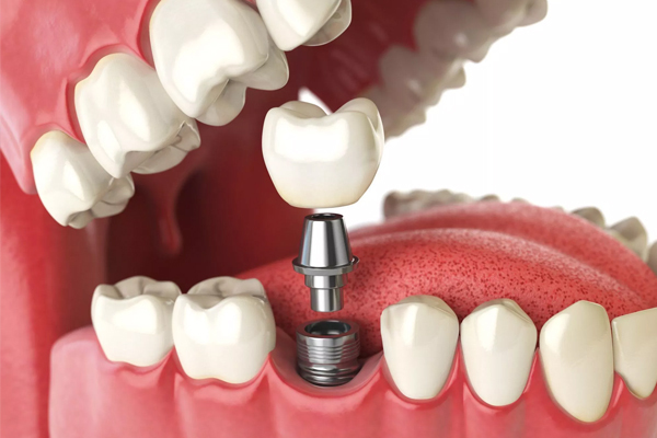 Heres Why You Should Consider Dental Implants
