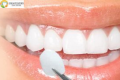 Cosmetic Dentistry 101 – Everything You Need to Know